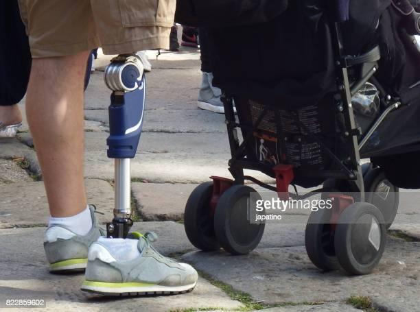 Man with artificial mechanical leg