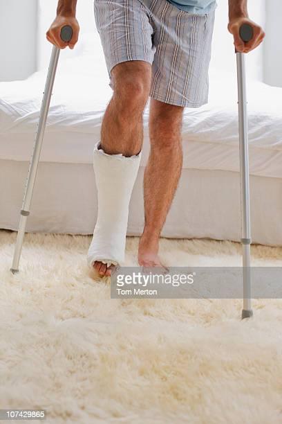 Mann mit einem gebrochenen Bein zu Fuß auf Krücken