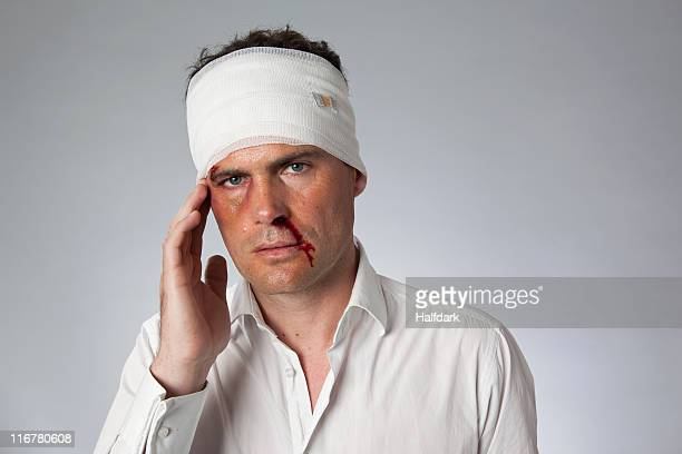 A man with bruises, a bloody nose and a bandaged head
