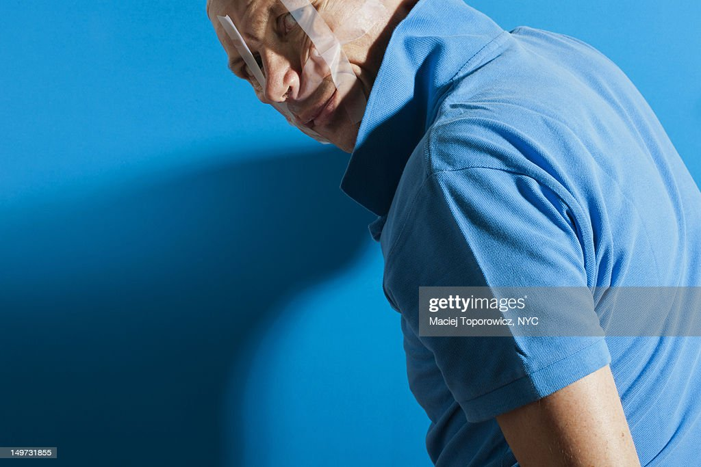 Man with disfigured face : Stock Photo