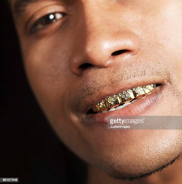 Man with gold teeth grill