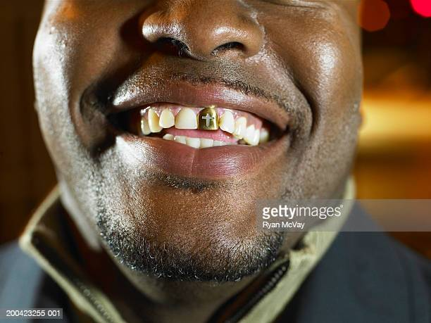 Man with gold tooth, smiling