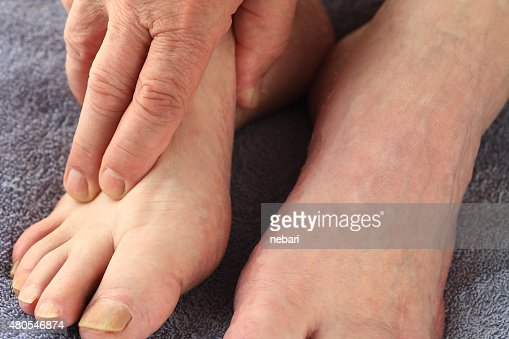 Homem com sua mão em um pé : Foto de stock