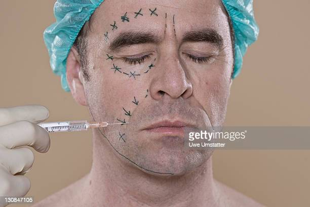 Man with lines on his face for a cosmetic surgery, getting an injection