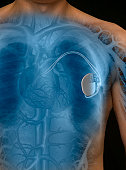 Man with pacemaker, mid section (Digital Composite)