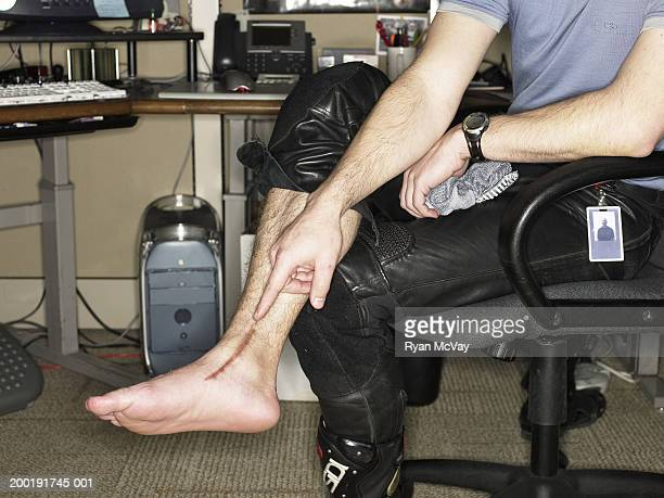 Man with pant leg rolled up, pointing at scar on ankle, low section