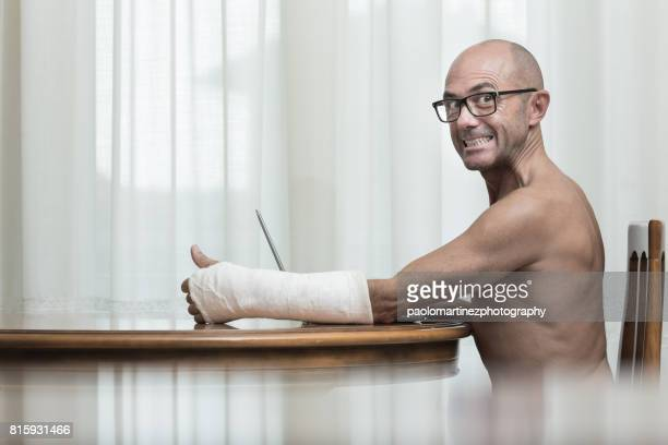 Man with plaster arm using laptop at home
