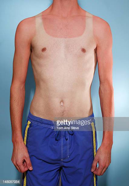 A man with sunburn in the shape of a summer vest