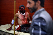 A man wounded in an air strike by Syrian government forces on Hammuriyeh in the rebelheld region of Eastern Ghouta on the outskirts of the Syrian...