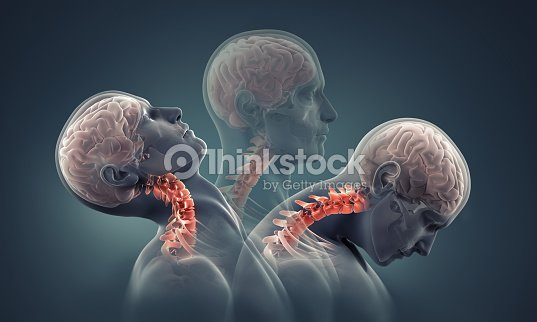 Man Xray With Neck Bones Highlighted Stock Photo | Thinkstock