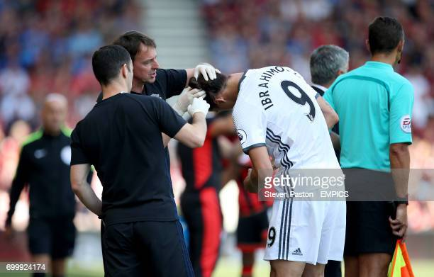 Manchester United's Zlatan Ibrahimovic gets his head checked out after a challenge