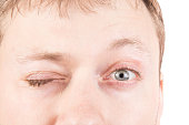 Man's blinking gray eyes, clean skin