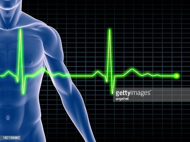 Mann Körper mit einer electrocardiogram gelagert
