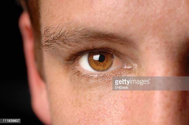 Man's Brown Eye with Cancer Close Up