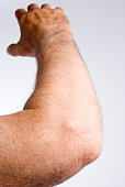 Man's elbow and arm