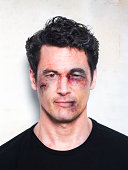 Man's face severely beaten up after fight