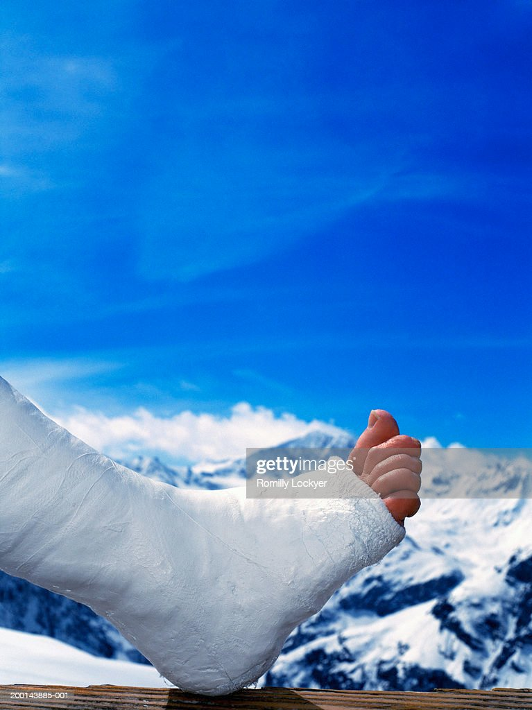 Man's foot in plaster, close up, snow covered mountains in background