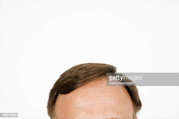 Man's forehead and hair
