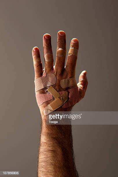 Man's hand covered in bandages