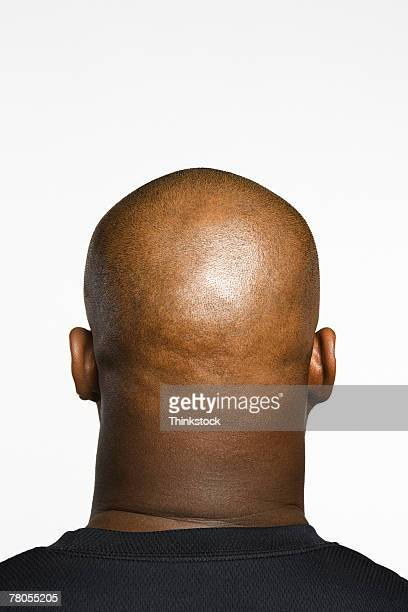 Man's head seen from behind