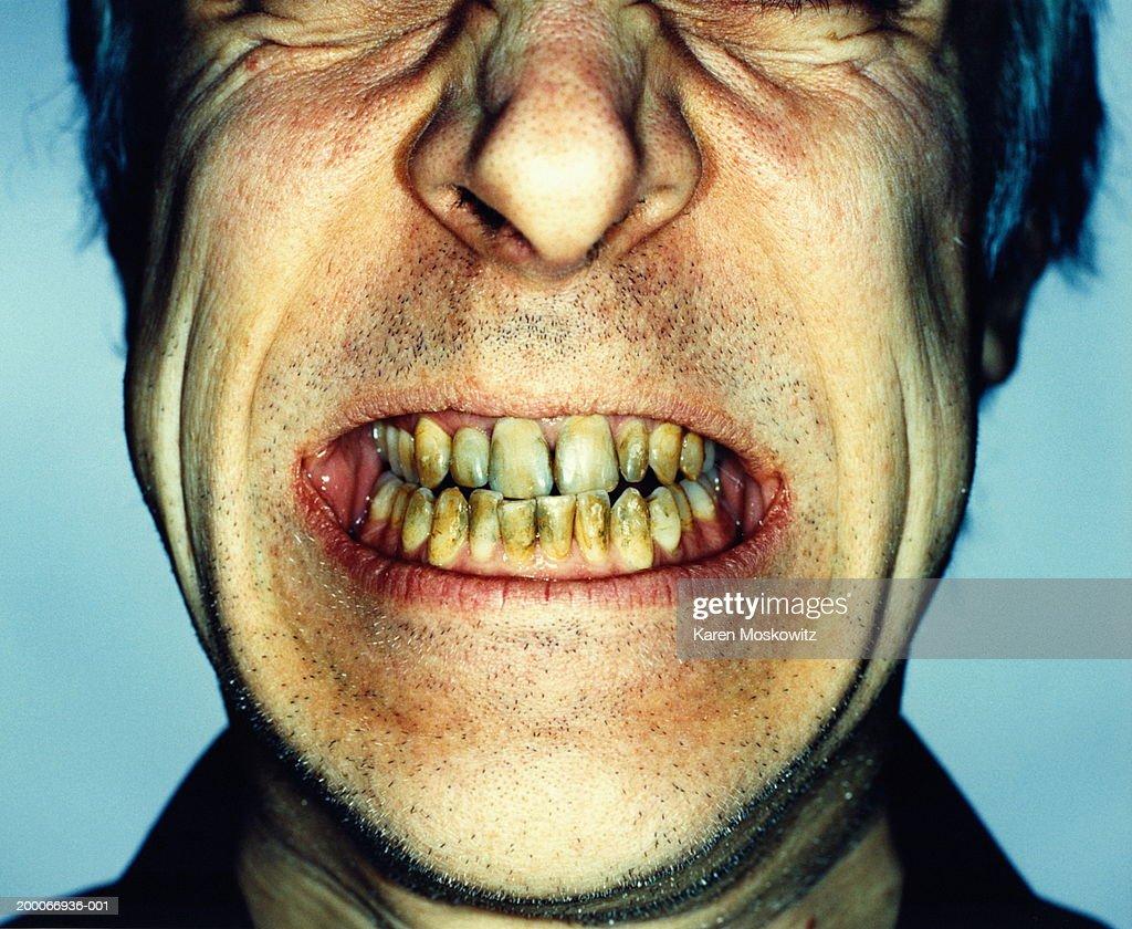 Man's teeth damaged by smoking, close-up : Stock Photo