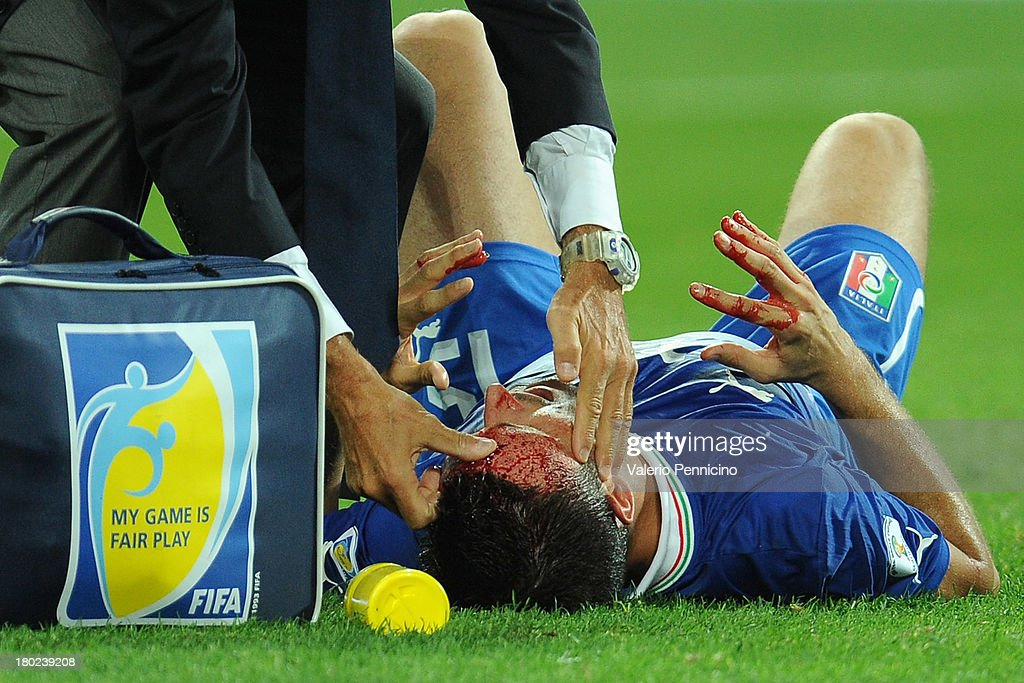 Manuel Pasqual of Italy receives treatment to a head injury during the FIFA 2014 World Cup Qualifier group B match between Italy and Czech Republic at Juventus Arena on September 10, 2013 in Turin, Italy.