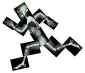 Marathon (human bone is running) ,(Whole body x-ray : head ,neck ,shoulder ,arm ,elbow ,forearm ,hand ,finger ,joint ,thorax ,abdomen ,back,pelvis ,hip ,thigh ,leg ,knee ,foot ,heel)