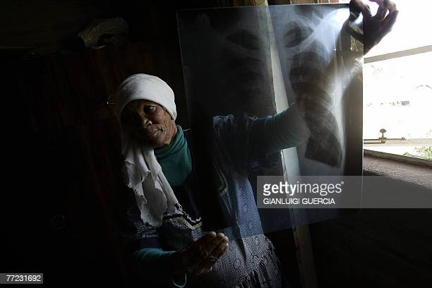 ROUX Maria Van Nell wife of Petrus Van Nell affected by Mesothelioma an Asbestos related form of cancer holds 28 October 2007 her husband's xray...