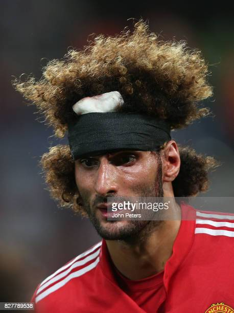 Marouane Fellaini of Manchester United shows the after effects of a head injury during the UEFA Super Cup match between Real Madrid and Manchester...