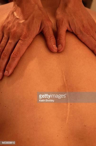 Massage Therapist Massaging a Man's Back