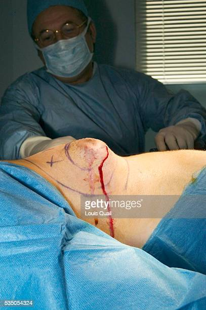 Matt Anderson is a student in New York He underwent gynecomastia surgery in 2005 at a cost of $6000 Here during his operation with Dr Blau after...
