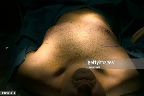 Matt Anderson is a student in New York He underwent gynecomastia surgery in 2005 at a cost of $6000 Here Matt shortly before his operation with Dr...