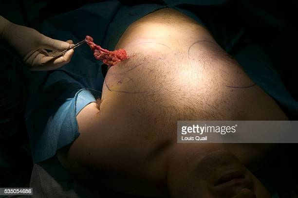 Matt Anderson is a student in New York He underwent gynecomastia surgery in 2005 at a cost of $6000 Here Matt has tissue removed from his breast...