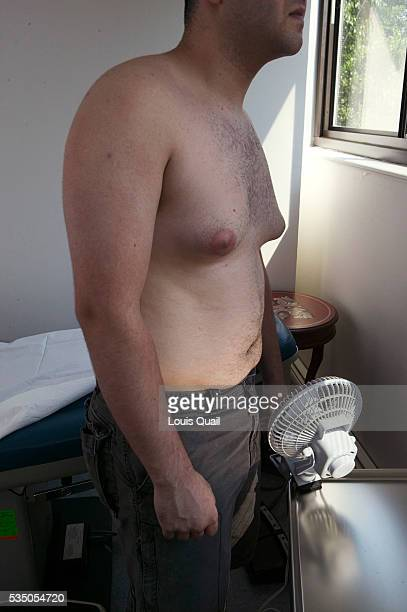 Matt Anderson is a student in New York He underwent gynecomastia surgery in 2005 at a cost of $6000 Here immediately before his operation with Dr...