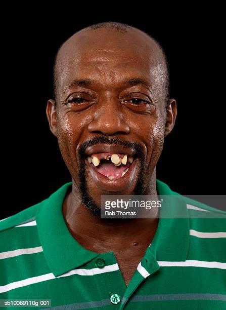 Ugly black guy