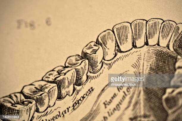 A medical drawing from 'A System of Human Anatomy Including its Medical and Surgical Relations' illustrates the lower jaw and teeth 1883