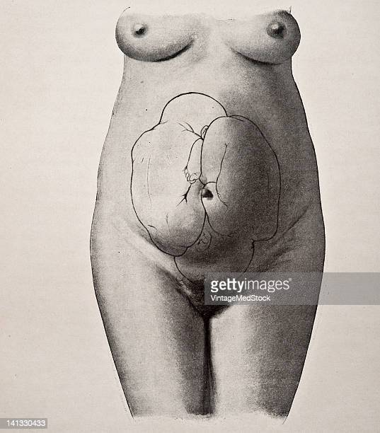 A medical drawing from 'Trattato Completo di Ostetricia' illustrates a female pregnant with twins 1905