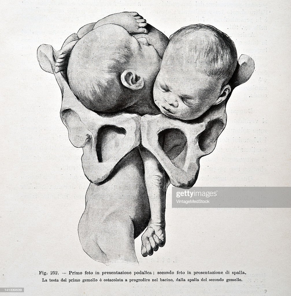A medical drawing from 'Trattato Completo di Ostetricia' illustrates a potentially dangerous restriction that may occur during delivery of twins 1905