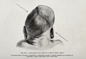 A medical drawing from 'Trattato Completo di Ostetricia' illustrates a baby with cranial deformations 1905
