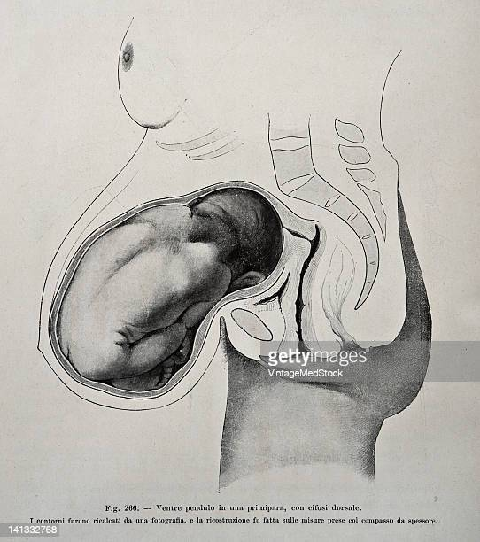 A medical drawing from 'Trattato Completo di Ostetricia' illustrates a pregnant woman 1905
