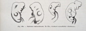 A medical drawing from 'Trattato Completo di Ostetricia' illustrates a few abnormally shaped embryos 1905