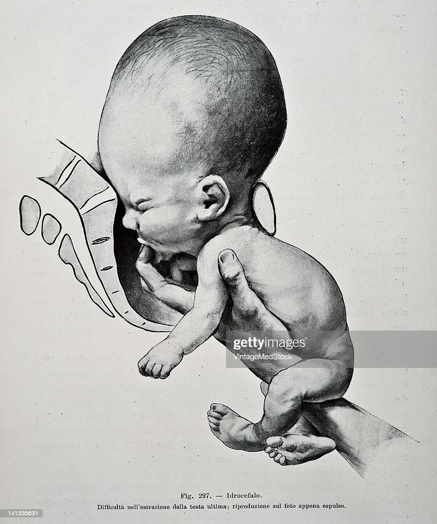 A medical drawing from 'Trattato Completo di Ostetricia' illustrates a human baby with hydrocephalus moving through the birth canal 1905