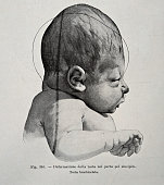 A medical drawing from 'Trattato Completo di Ostetricia' illustrates a newborn with a skull deformation 1905
