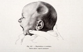 A medical drawing from 'Trattato Completo di Ostetricia' illustrates a newborn with a concave depression of the skull 1905