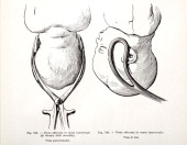 A medical drawing from 'Trattato Completo di Ostetricia' illustrates a human fetus with their head caught in transverse direction 1905