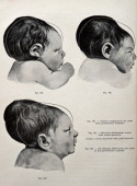 A medical drawing from 'Trattato Completo di Ostetricia' illustrates abnormal skull shapes and plagiocephaly 1905