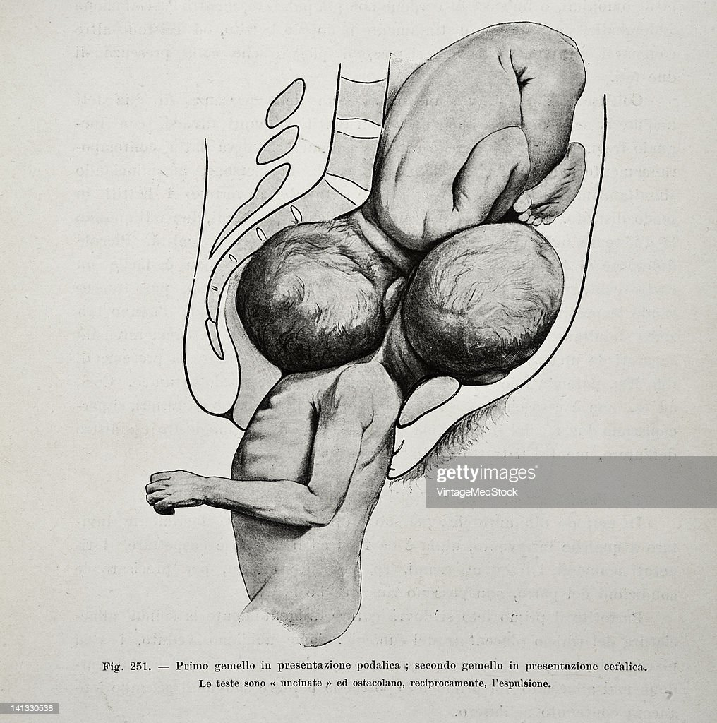 A medical drawing from 'Trattato Completo di Ostetricia' illustrates twins during delivery 1905