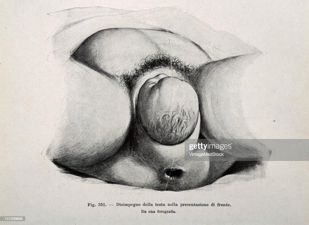 A medical drawing from 'Trattato Completo di Ostetricia' illustrates birth 1905