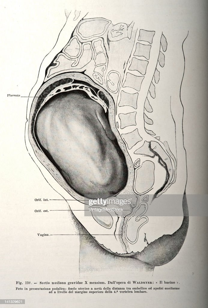 A medical drawing from 'Trattato Completo di Ostetricia' illustrates the abdomen of a pregnant woman and the fetus 1905