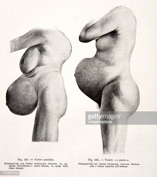 A medical drawing from 'Trattato Completo di Ostetricia' illustrates two pregnant women with abnormal fetal positioning 1905